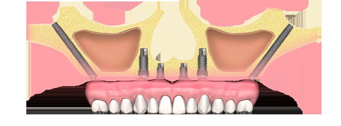 Implantes dentales cigomáticos