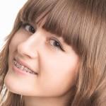 cuidados-dentales-durante-adolescencia