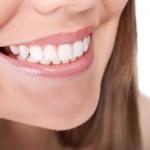 blanqueamiento dental2
