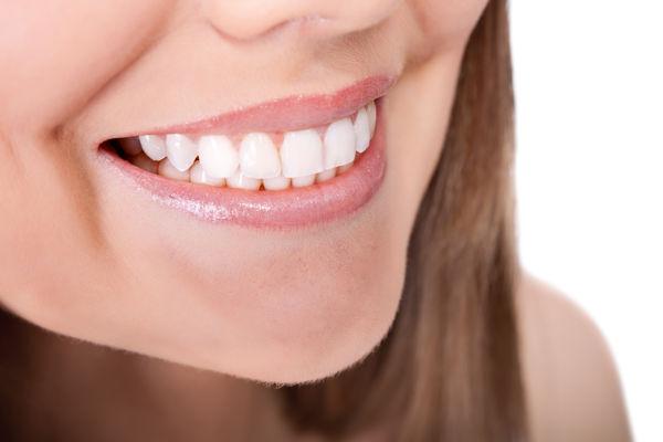 Blanqueamiento dental, el poder de unos dientes blancos y brillantes