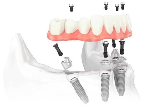 implante dental1