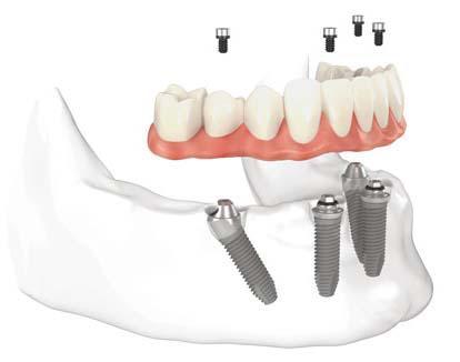 implante dental2