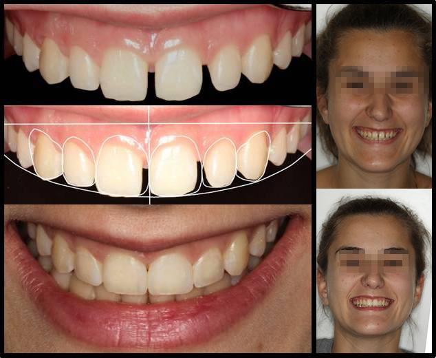 Diseño Digital de Sonrisas: los resultados