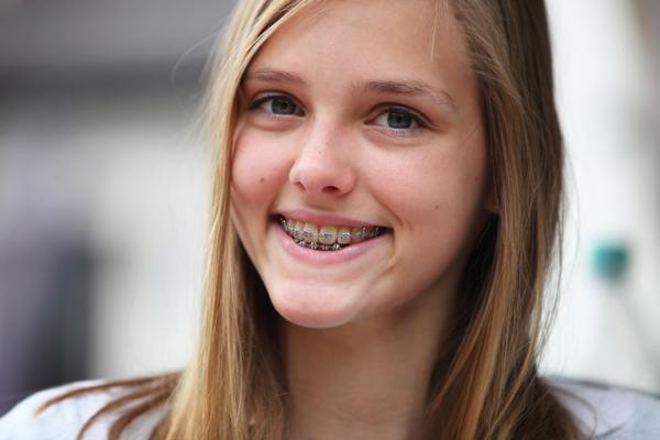 Ortodoncia en niños, la importancia de empezar pronto