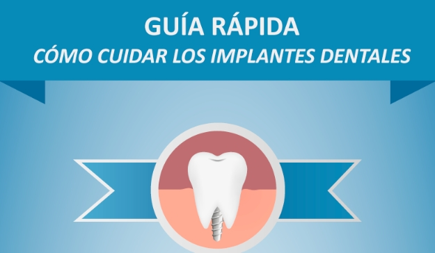 [Guía rápida] Cómo cuidar los implantes dentales