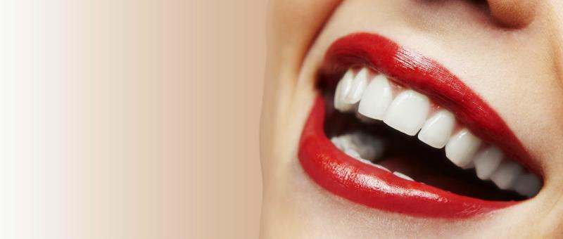 Carillas dentales, el secreto de la sonrisa perfecta