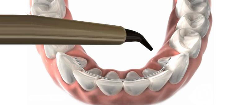 ¿Cómo evitar que los dientes se muevan después de la  Ortodoncia?
