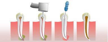 Postoperatorio de la endodoncia