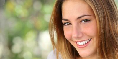 Carillas estéticas dentales