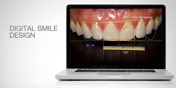 Diseño de sonrisas y estética dental