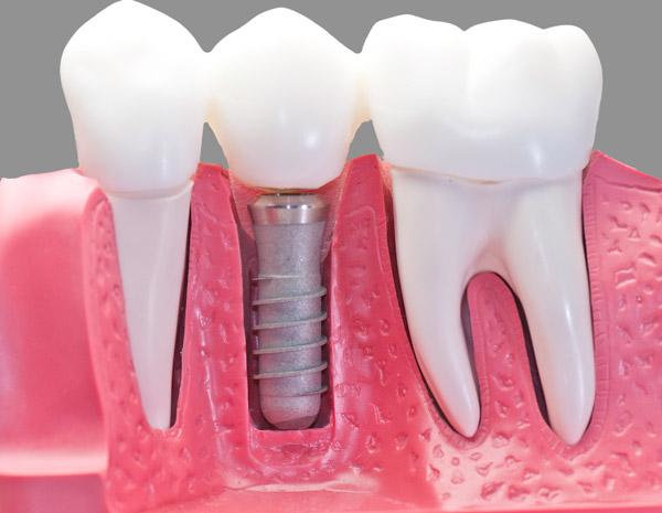 Implantes dentales en Aguilar Dental Salut Barcelona