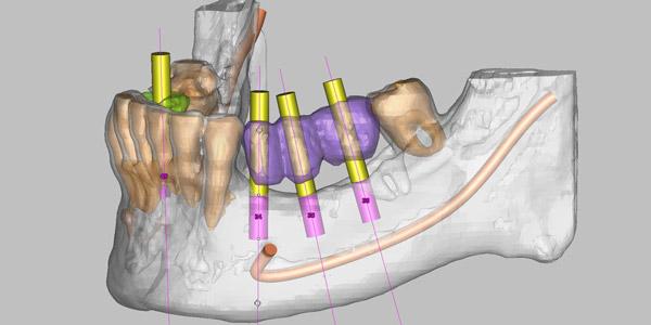 Implantes dentales con cirugía guiada