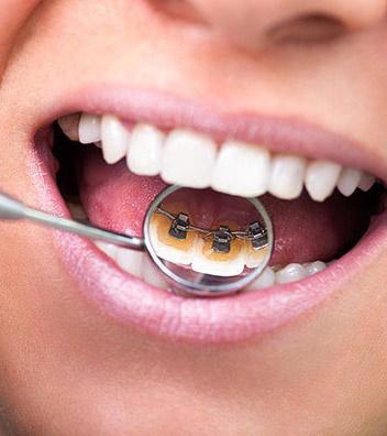 Ortodoncia lingual en Aguilar Dental Salut Barcelona