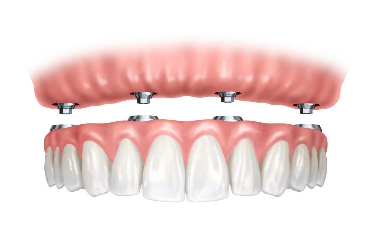 Prótesis dentales híbridas