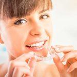 ortodoncia y encias