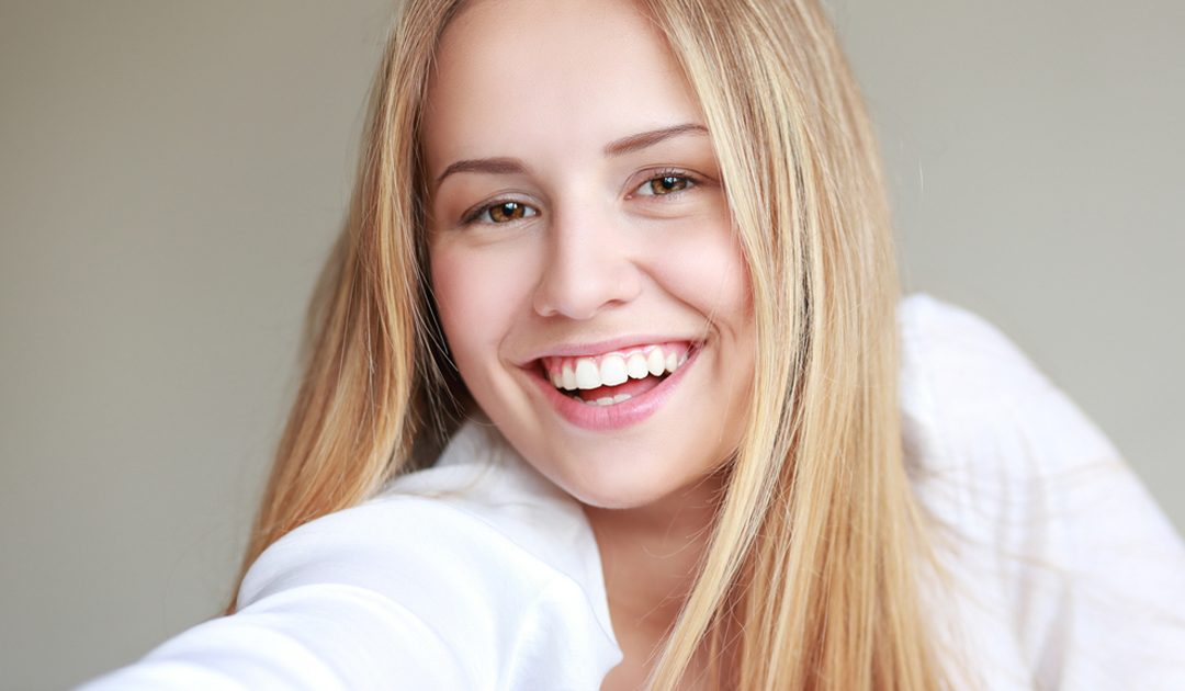 Invisalign® Teen con Avance Mandibular, la última innovación en ortodoncia para adolescentes