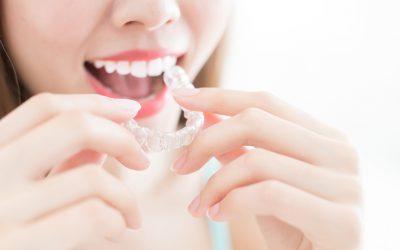 Retenedores de ortodoncia ¿Cuánto tiempo hay que llevarlos?