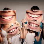 limpieza dental profesional en barcelona