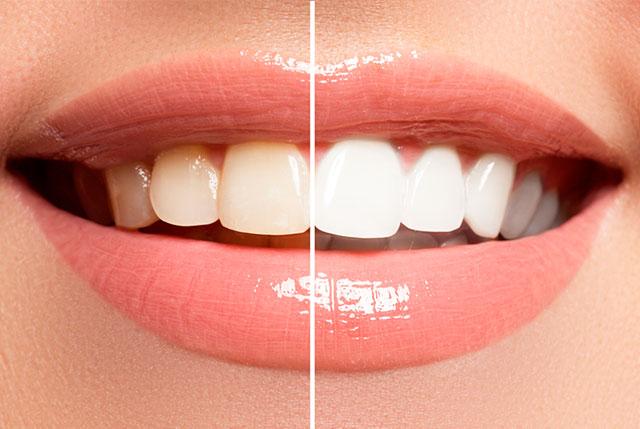 Carillas dentales de Disilicato de Litio, descubre tu nueva sonrisa