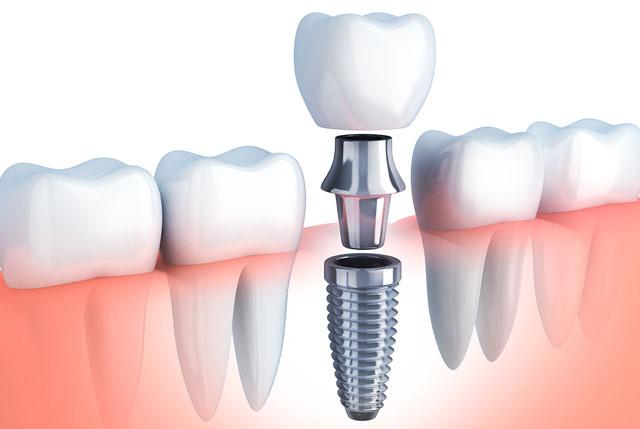 Implantes dentales: lo que tienes que saber.