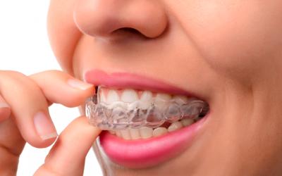 Invisalign es la ortodoncia invisible preferida para adultos