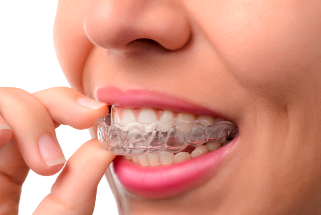 Invisalign es la ortodoncia invisible preferida para adultos