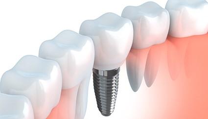 Te falta un diente ¿Un Implante, Ortodoncia? ¿Cuál es la mejor solución?