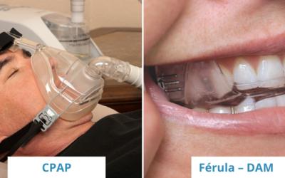 Apnea del Sueño, ventajas de la Férula-DAM vs CPAP